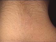 kurs laserowe usuwanie tatuaży i makijażu permanentnego