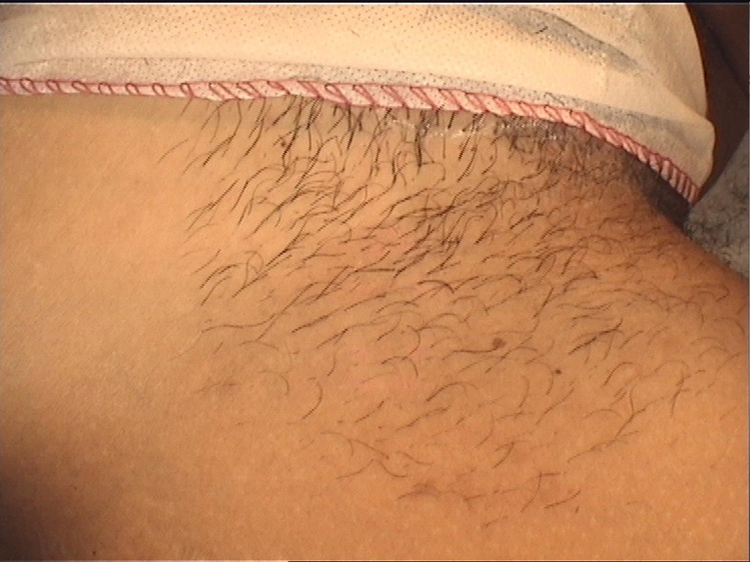 utrata włosów na nogach