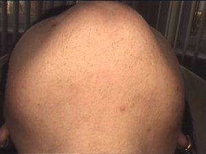 Depilacja laserowa twarzy rok po przeprowadzonych 7 zabiegach (włosy nieprzygolone)