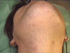 Depilacja laserowa twarzy, przed zabiegiem (włosy przygolone maszynką)