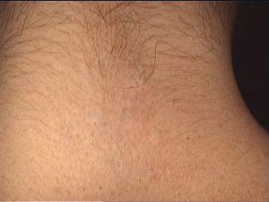 Po trzech zabiegach - laserowe usuwanie tatuażu