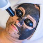 Peeling węglowy, carbo peel, black doll, oczyszczanie skóry poznań, zaskórniki usuwanie, cera tłusta zabiegi, cera trądzikowa zabiegi