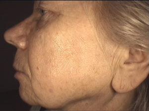 Zabieg frakcyjny. Odmładzanie skóry twarzy - efekt po jednym zabiegu