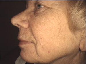 Zabieg frakcyjny. Odmładzanie skóry twarzy - przed zabiegiem