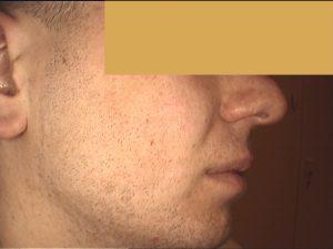 Zabieg frakcyjny. Skóra trądzikowa ,tłusta, blizny potrądzikowe i przebarwienia - efekt po 2 zabiegach