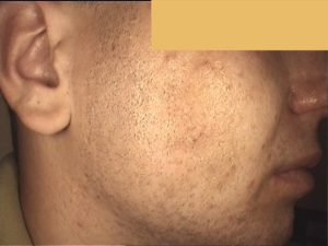 Zabieg frakcyjny. Skóra trądzikowa ,tłusta, blizny potrądzikowe i przebarwienia - przed zabiegiem