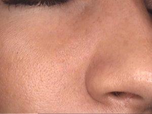 Laserowe zamykanie naczynek na nosie - efekt po jednym zabiegu