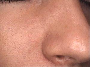 Laserowe zamykanie naczynek na nosie ? przed zabiegiem