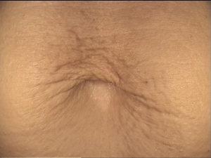 Zabieg frakcyjny. Wiotkość skóry po ciąży, brzuch - przed zabiegiem