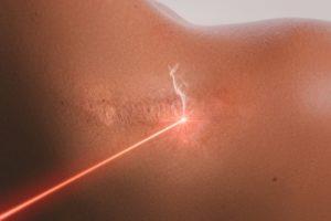 Laserowe usuwanie blizn potrądzikowych